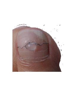 Drátkové špony na nehty Marsal